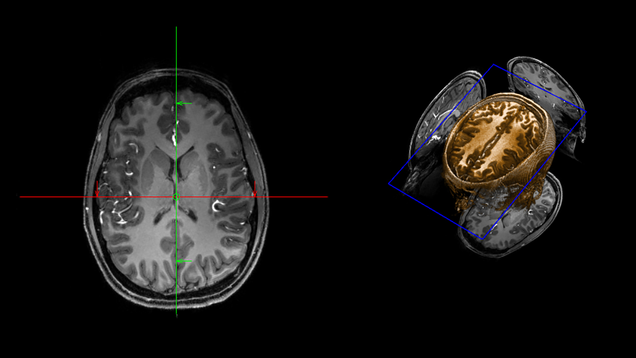 Brain scan image provided by the MRI Research Center